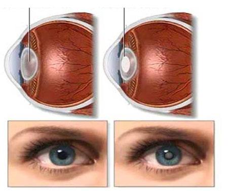 白内障眼球图片_莎普爱思告诉大家:为什么会得白内障