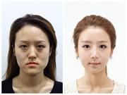 韩国姐妹花整容 成功逆袭为女神