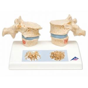 骨质疏松症的危害是什么?