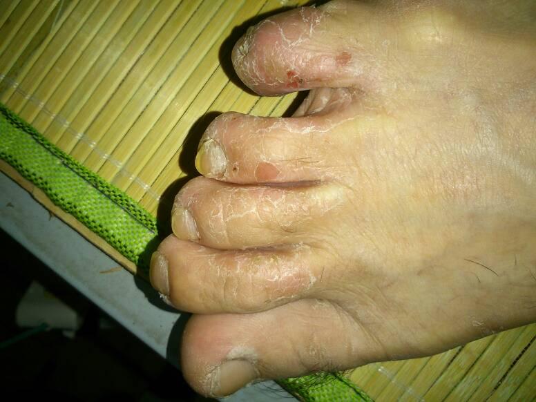 用白糖搓脚可治脚气用白糖搓脚可治脚气
