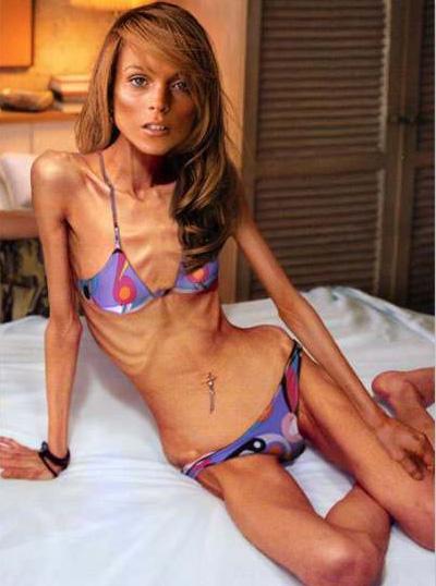 美女过度减肥到成干尸