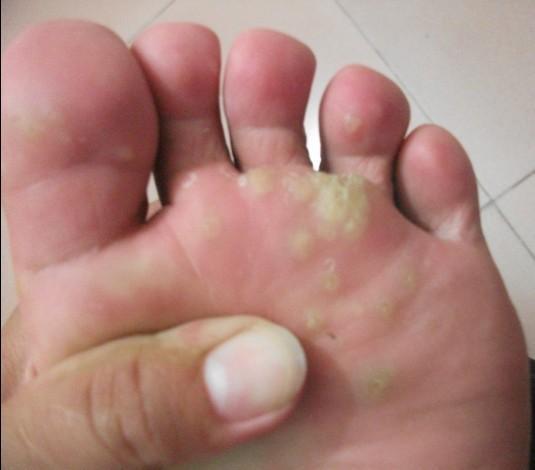脚底疼痛部位图解
