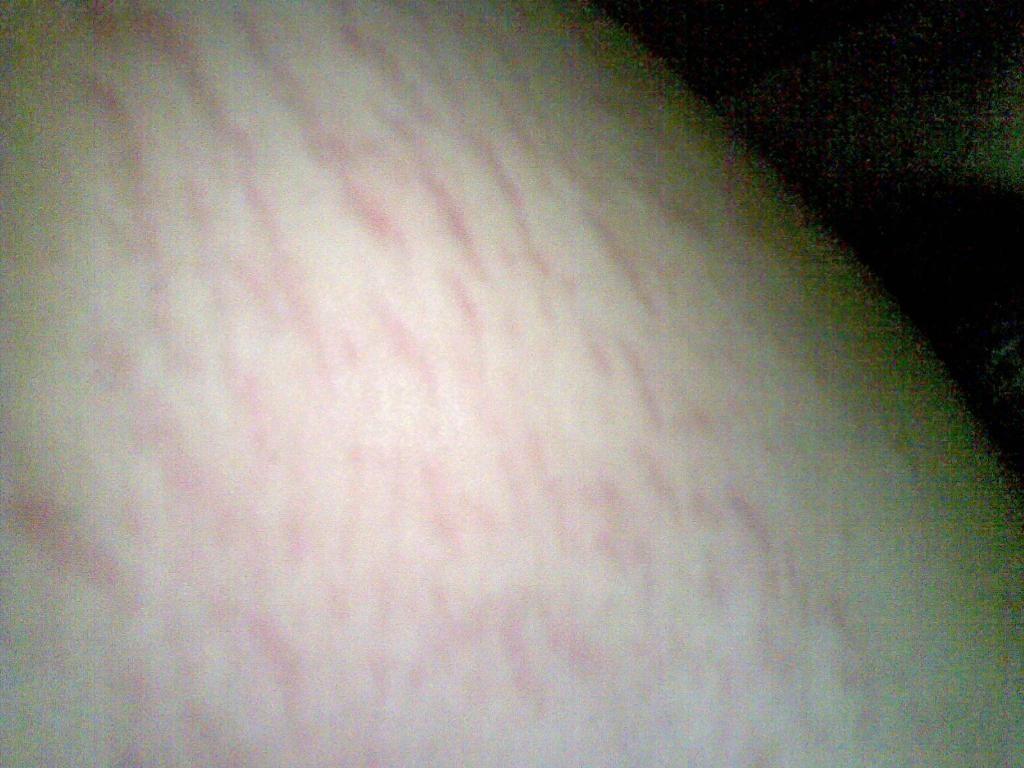 内侧疙瘩大腿肚内侧网状红斑怎么治
