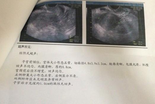 阴超子宫_阴道炎怎么治疗 请问我的子宫正常吗