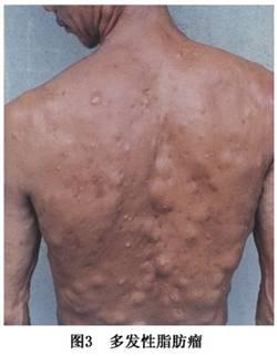 脂肪瘤症状 脂肪瘤有什么症状 查疾病 疾病大全 医网