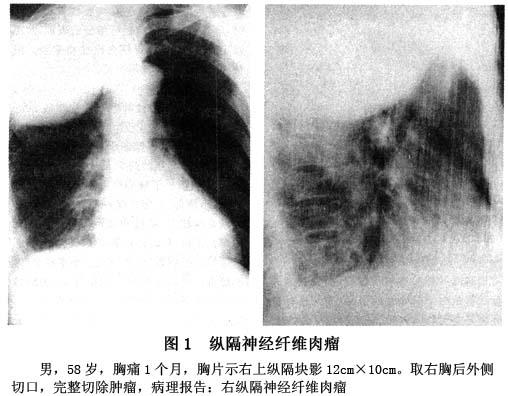 气管和纵隔移位的检查 气管和纵隔移位要做哪些检查 查症状 疾病大全