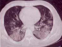 传染性非典型肺炎