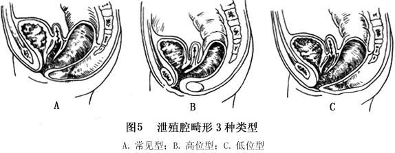 的盆腔结构进行解剖组织学研究, 同时盆底肌内、骶骨、神经及肛周