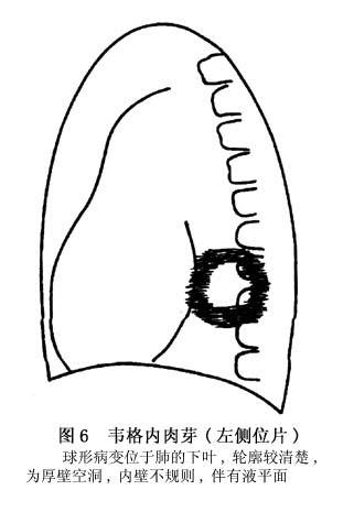 肉芽组织图片手绘