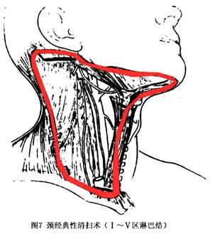 颈部淋巴在哪个位置